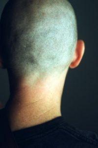 neck-200x300